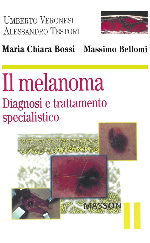 il melanoma - Diagnosi e trattamento specialistico