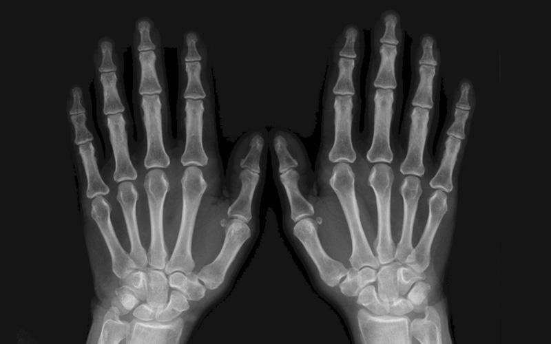 STUDIO RADIOLOGICO CARROCCIO - radiologia tradizionale